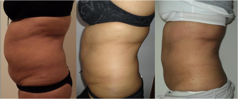 Results from one client in Newton